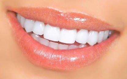 İnci Gibi Dişleri Kim İstemez